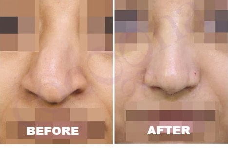 cocoona.gr8services.ae-successstory-nosereconstruction-nose.jpg